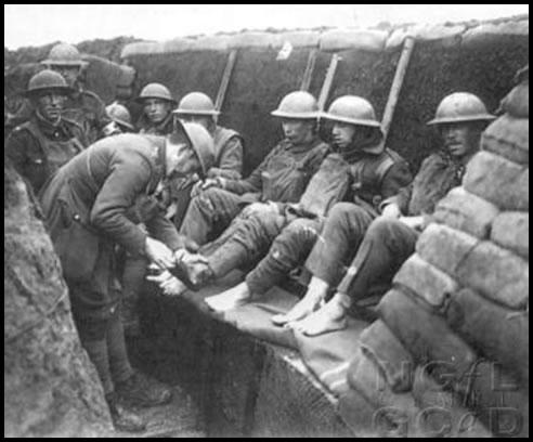 Resultado de imagen de pie de trinchera