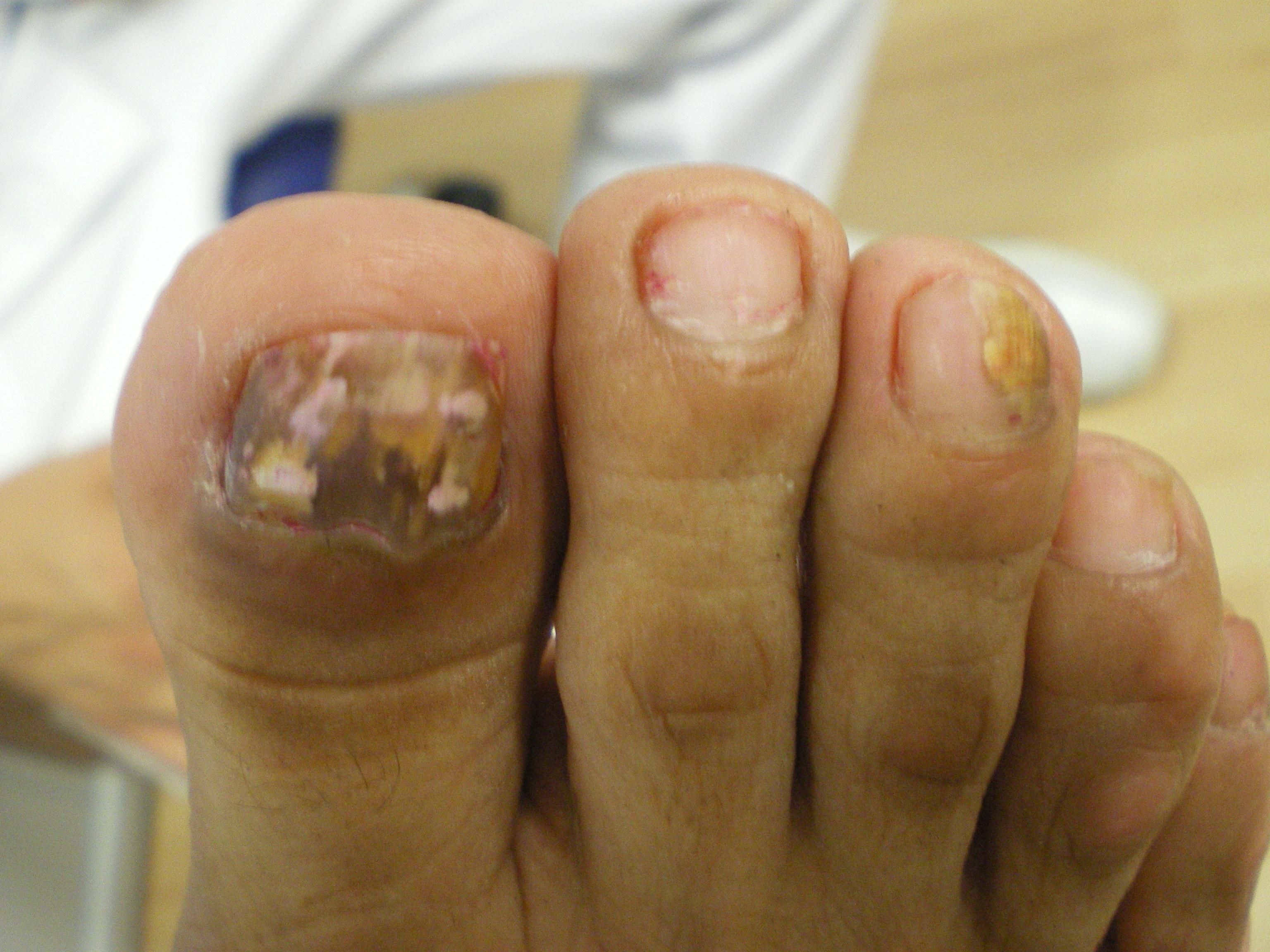 Ekzoderil al hongo sobre las uñas
