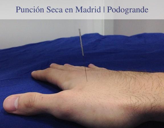 Punción Seca con un Fisioterapeuta en Madrid