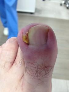 PreQuirurgico dedo